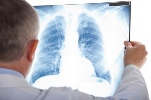 Doctor examining a lung radiography (stock image). Credit: © Minerva Studio / Fotolia